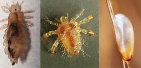 Hoe de luizen eruit zien: bekend met de kenmerken van het uiterlijk en de biologie van parasieten